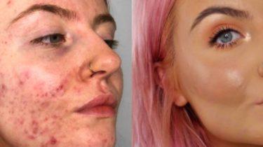 huda beauty faux filter acne